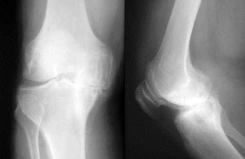 Knee Osteoarthritis X-ray