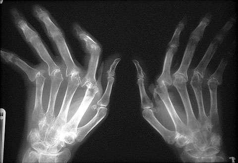 Rheumatoid Arthritis of the Hands X-ray